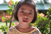 This girl is one of many children Angus has photographed during his work with Uplift Internationale. Surgery on her face corrected a cleft palate.